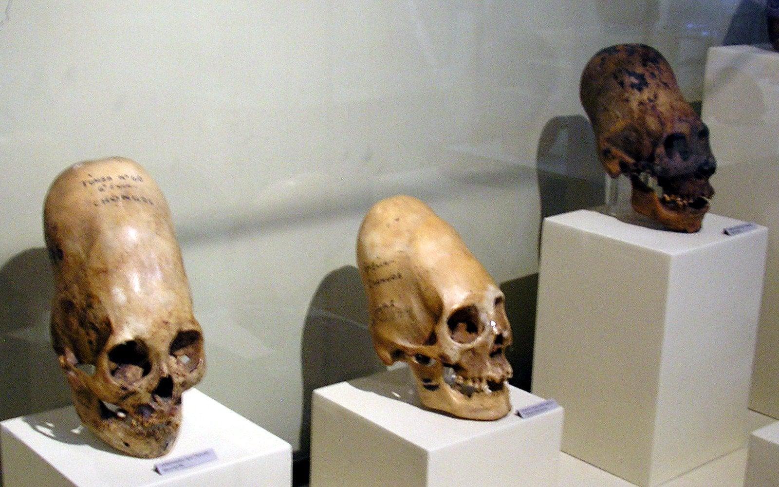 Brian Foerster věří, že výsledky DNA ukazují na poddruhy lidí.
